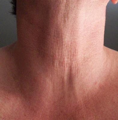 treatment for crepey skin in necklace area