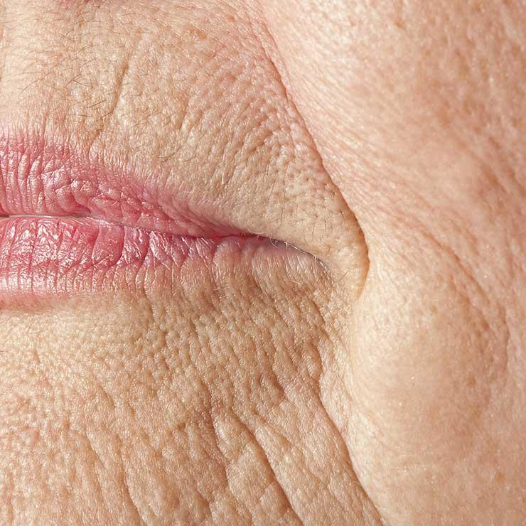 wrinkles around the corner of the mouth