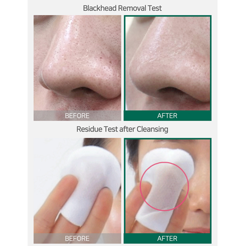 Get rid of blackhead toner